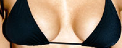 zoom in breast 4